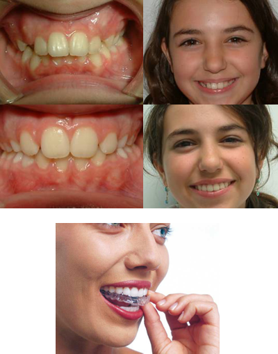 orthodontikh